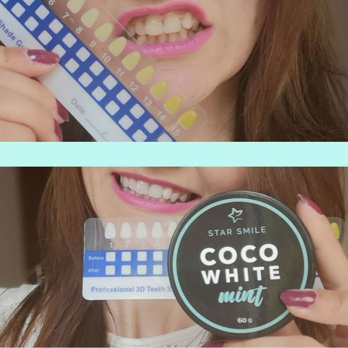 Wybielanie Zębów – CoCo White Mint