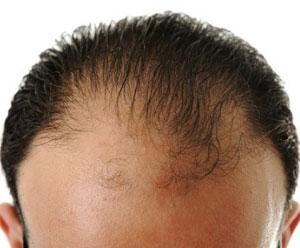 Jakie tabletki na wypadanie włosów wybrać