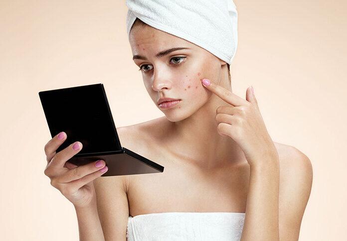 Kiedy warto wybrać się do kosmetyczki, a kiedy do dermatologa