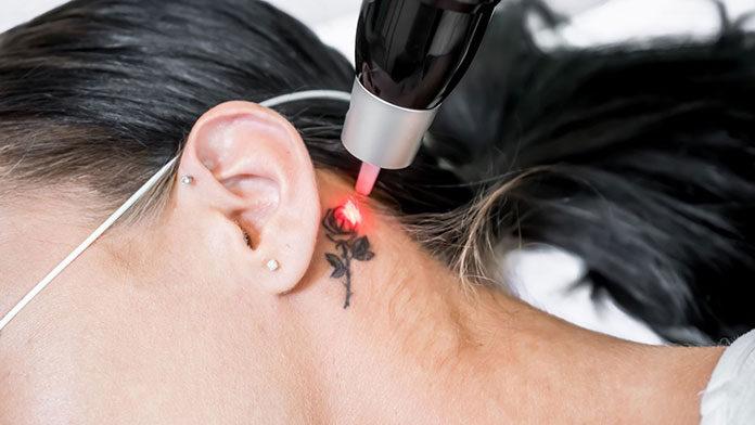 Niechciany tatuaż